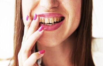8 maisto produktai, kurie labiausiai gadina dantis
