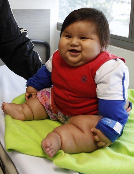 """Sunkiausiam pasaulyje kūdikiui paskirta dieta <span style=""""color: #ff0000;""""><sup>FOTO</sup></span>"""