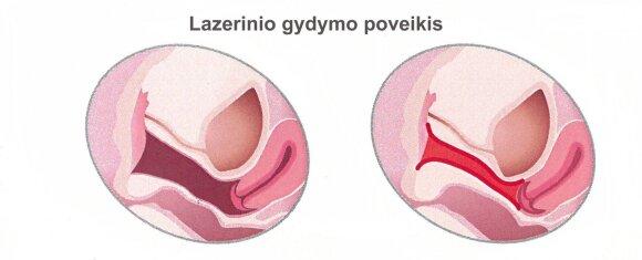 Lazerinio gydymo poveikis