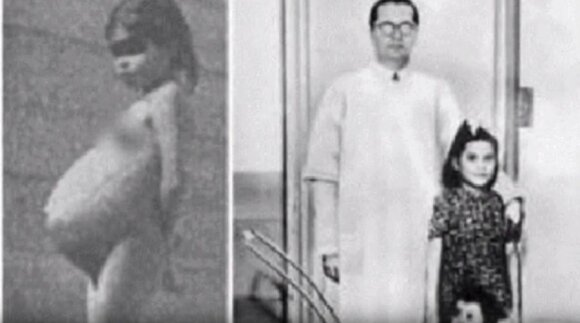 Mirė jauniausia motina žmonijos istorijoje, kūdikio susilaukusi penkerių metų