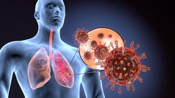 COVID-19 poveikis plaučiams