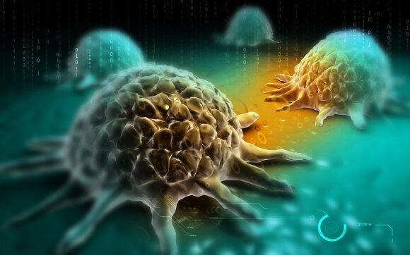 Kaip gerklės vėžys susijęs su pasikeitusiu seksualiniu gyvenimu: įvardijo pavojingus simptomus