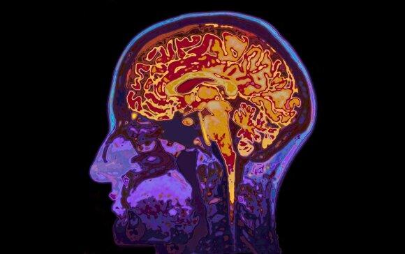 Mokslininkai paaiškino, kas vyksta su smegenimis, kai jūs nuolat skundžiatės