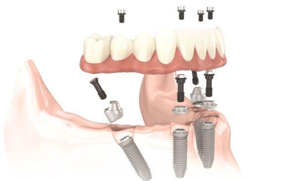 """Gydymo metodika, antkurianti visus žandikaulio dantis tik ant keturių implantų """"Visi ant 4"""""""