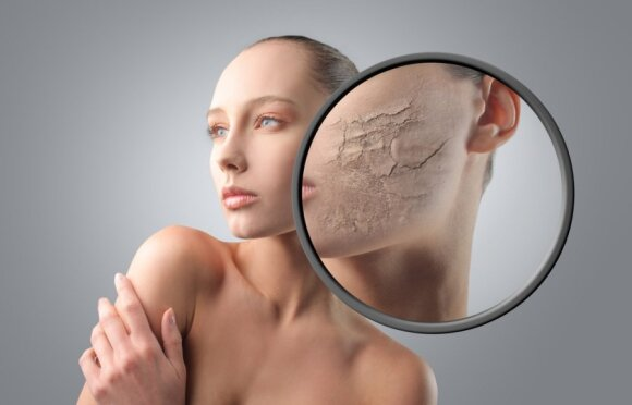 Patarimai, kaip išvengti nemalonaus odos tempimo? LAIMĖTOJAI