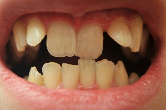 Ką dantys pasako apie jūsų charakterį