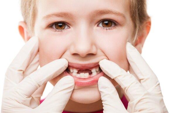 Darosi nebejuokinga: Lietuvoje dantis geriau rauti lauk, nei taisyti