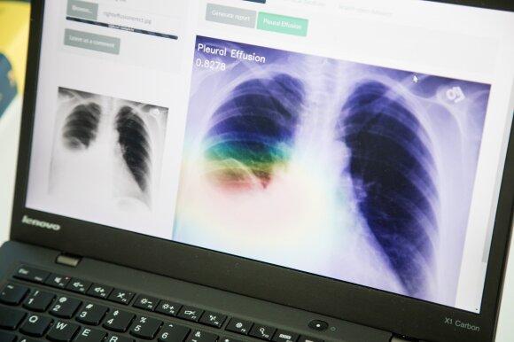 Rado būdą, kaip spręsti medikų trūkumą: sunkiausias ligas diagnozuos ne tik gydytojai