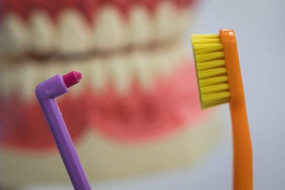 Dantų akmenys ne tik bjauroja šypseną: nepriežiūra gali sukelti rimtų problemų
