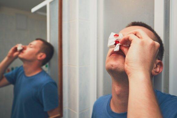 Šeimos gydytojas išvardijo galimas kraujavimo iš nosies priežastis: gali įspėti ir apie rimtas ligas