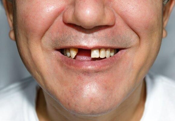 Trūksta dantų