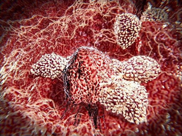 T ląstelės atakuoja vėžio ląsteles