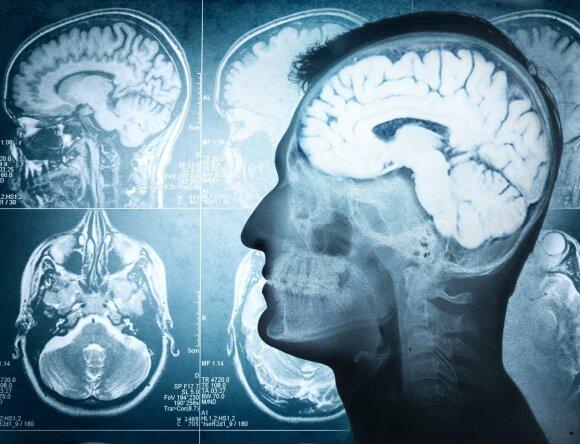 Neurologas: ko imtis, kad turėtume aštrų protą iki žilos senatvės