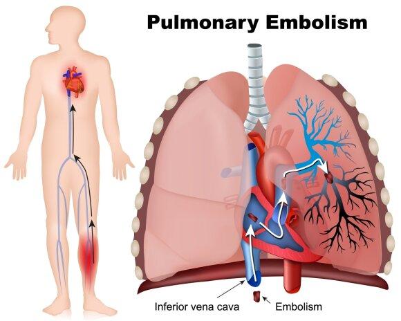 Plaučių trombinė embolija