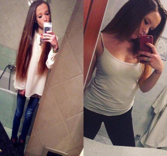 Vos 33 kilogramus svėrusios merginos pokyčiai įkvepia tūkstančius, kenčiančius nuo anoreksijos