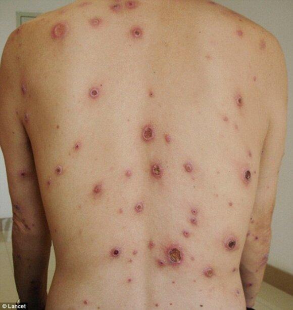 Mitais apipinta sifilio liga: kokie simptomai iš tikrųjų pasireiškia?