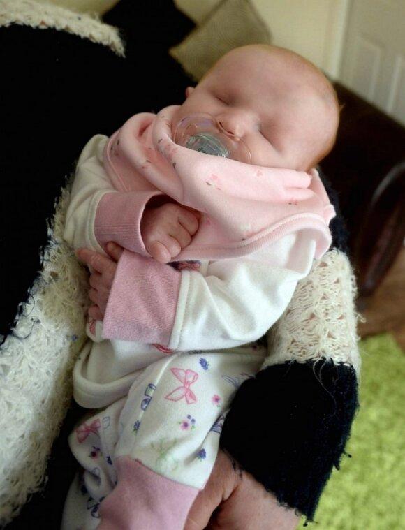 Vaiką be akių pagimdžiusi moteris atsisakė aborto