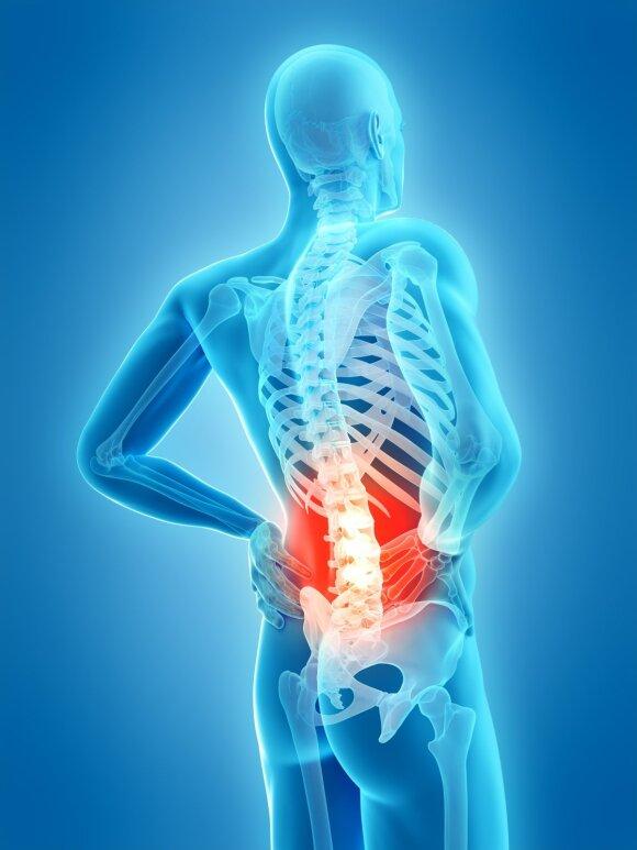 Gydytojas Tankevičius pateikė kelias svarbiausias taisykles visiems, kuriuos kamuoja nugaros skausmai