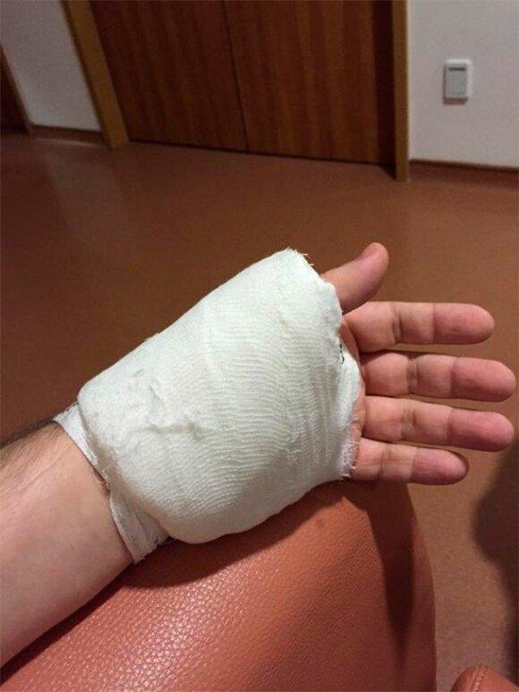 Гарик Харламов покалечил себя ножом