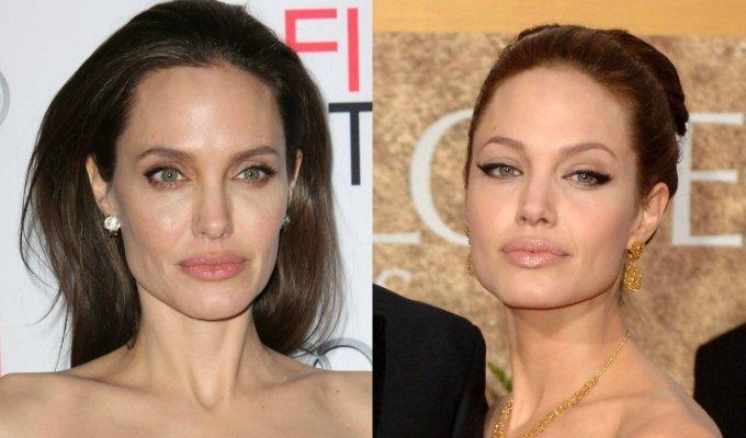 Kaip vieneri metai pakeitė MENOPAUZĘ išgyvenančią A. Jolie