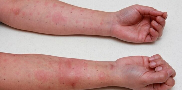 4 vaikų mama: dabar nebesakau, kad alergija - išsidirbinėjimas
