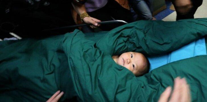 """Medikai gelbsti kūdikį, į kurį buvo įsmeigta 16 adatų <span style=""""color: #ff0000;""""><sup>(FOTO)</sup></span>"""