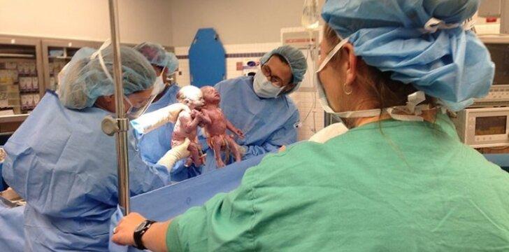 Kaip šiandien gyvena ypatingos dvynės, kurios gimė susikibusios rankomis