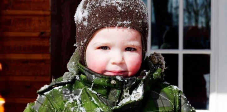 Kaip namuose pasigaminti kremą, saugantį odą nuo šalto oro