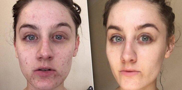 Neįtikėtinas rezultatas: metus laiko neprausus veido dingo visos odos problemos