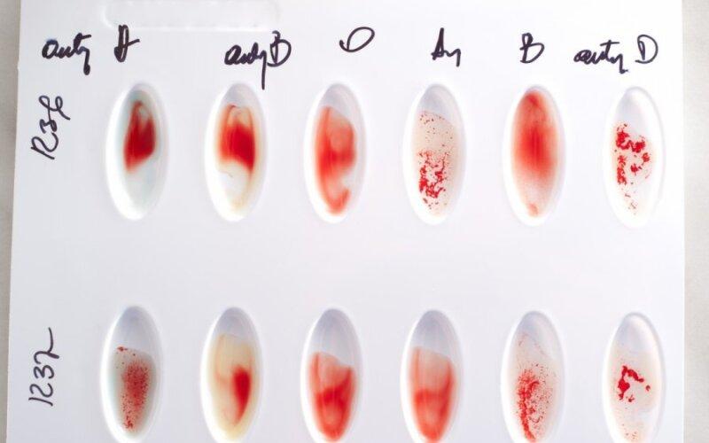 kraujo grupė