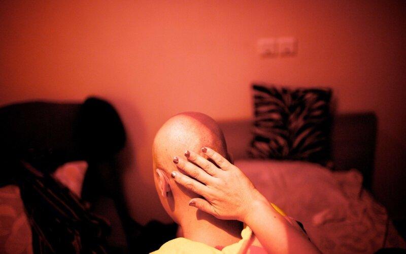 radioterapija
