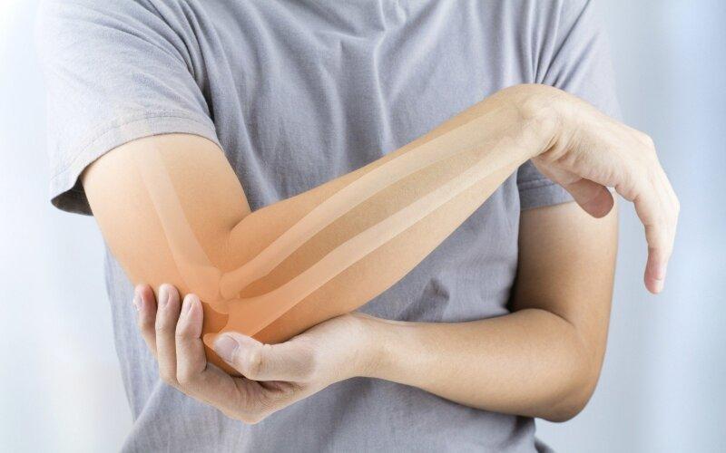 Osteoporozė