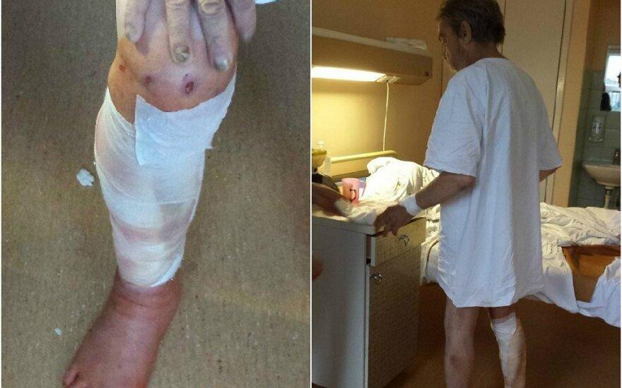 Paauglių užpultas benamis žaizdas gydosi ligoninėje