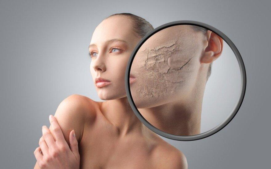 Odos liga, kuri ryškiai matoma veide