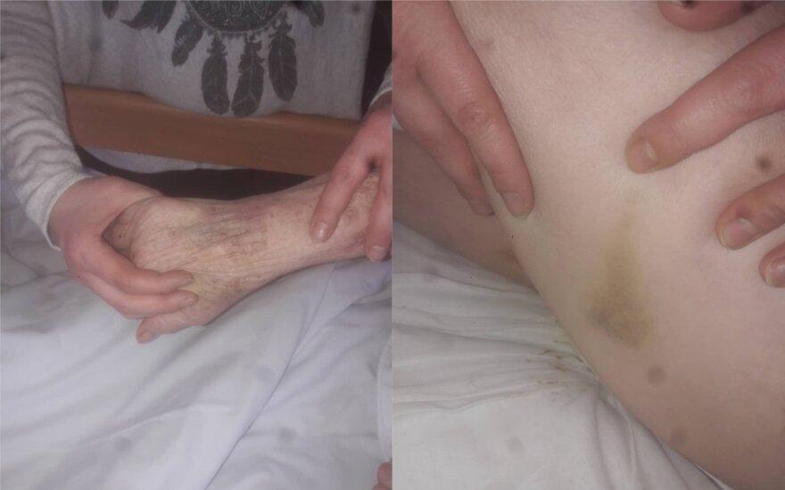 Radviliškio ligoninėje sumušta pacientė