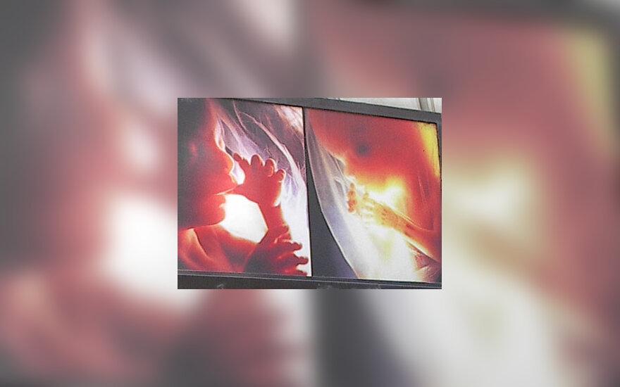 Abortas, gimdymas