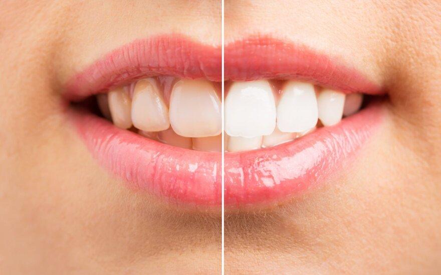 Didžiausios klaidos, kurias daro norintys baltų dantų