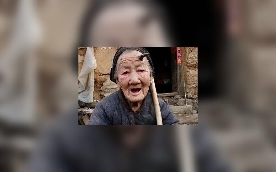 У 103-летней китаянки растут рога