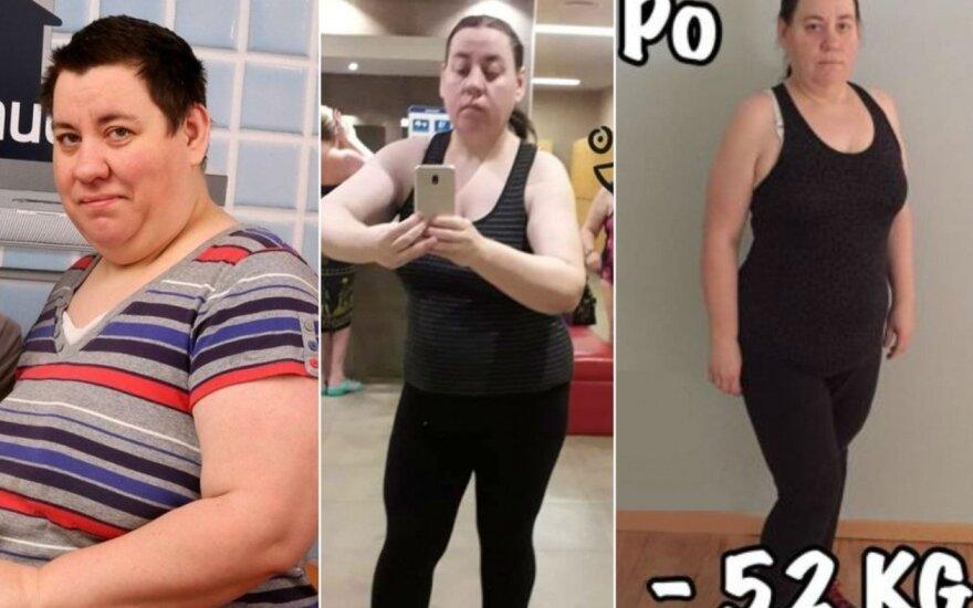 140 kg svėrusi Rima Antonovienė pribloškė pokyčiais