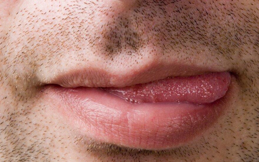 Kodėl sutinsta liežuvis? Gydytojai įvardijo keletą galimų priežasčių