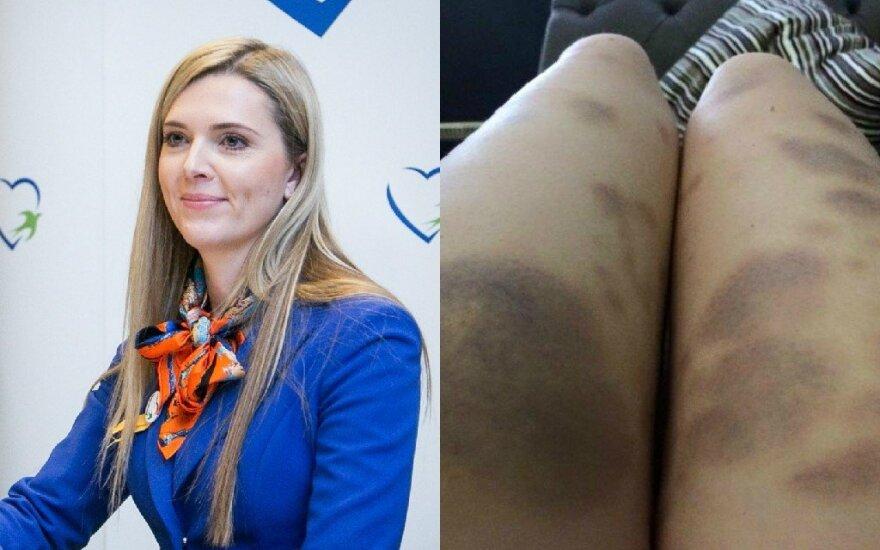 Agnė Bilotaitė parodė mėlynių nusėtas kojas