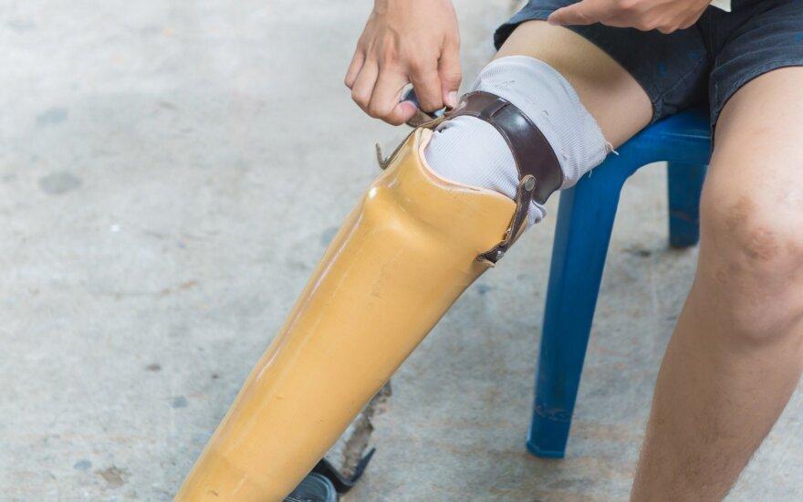 Kojos protezas