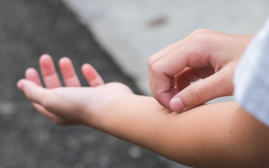 Lietuvos mokslininkų tyrimai padėtų pažaboti daugelį kamuojančias odos ligas