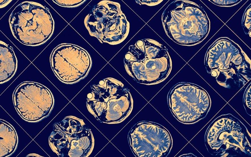 Mokslininkai smegenyse atrado slaptus tunelius