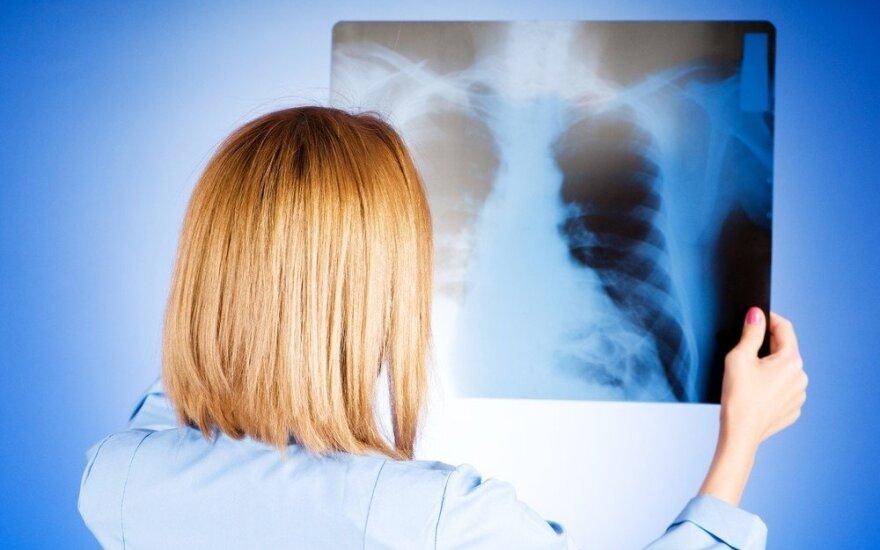 Vėžiniai dariniai plaučiuose randami ir visiškai atsitiktinai