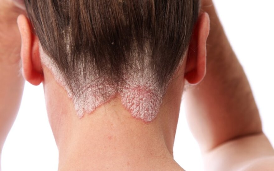 Lėtinė neišgydoma uždegiminė odos liga: ar gali pakenkti širdžiai?