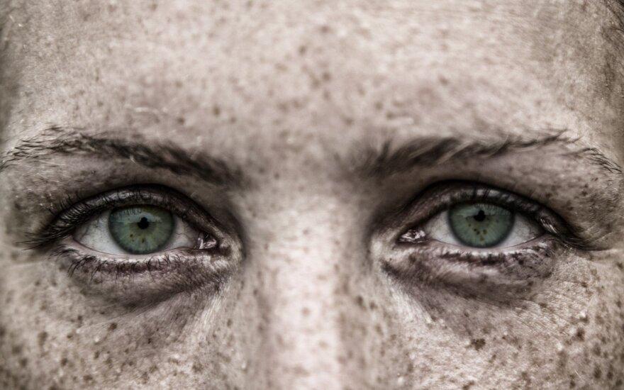 Penki vitaminų stygiaus požymiai, matomi jūsų veide