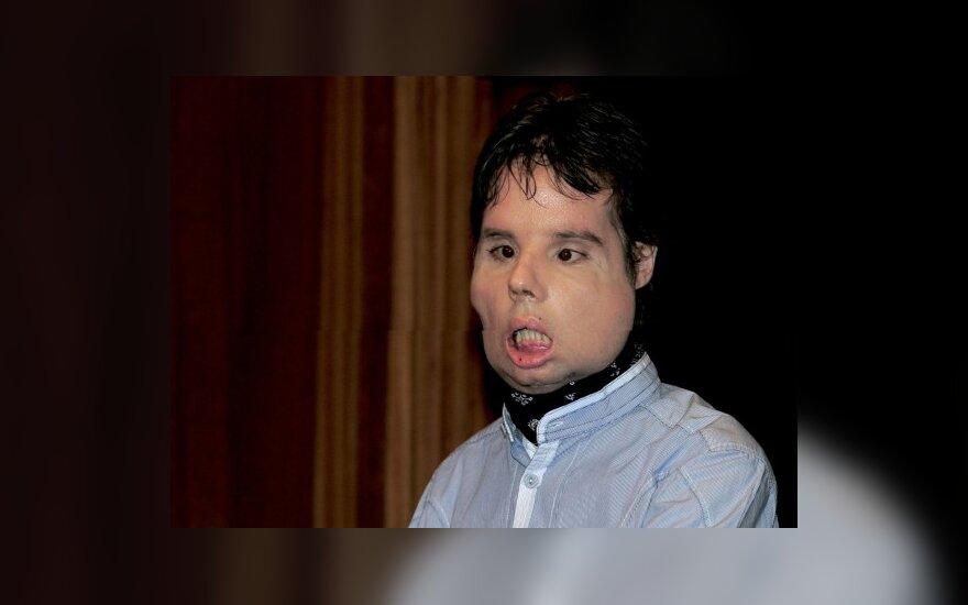 Pirmosios pasaulyje viso veido transplantacijos pacientas pasirodė per televiziją
