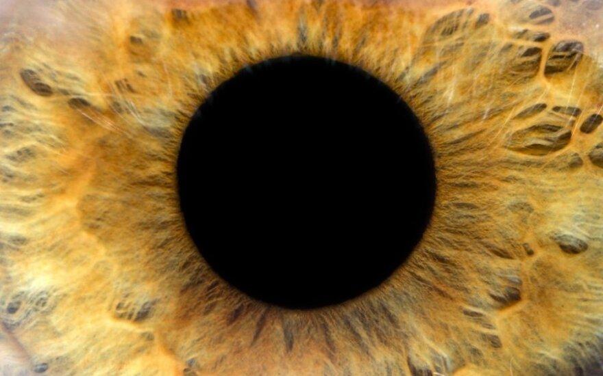 Kokias ligas galima atpažinti iš akių
