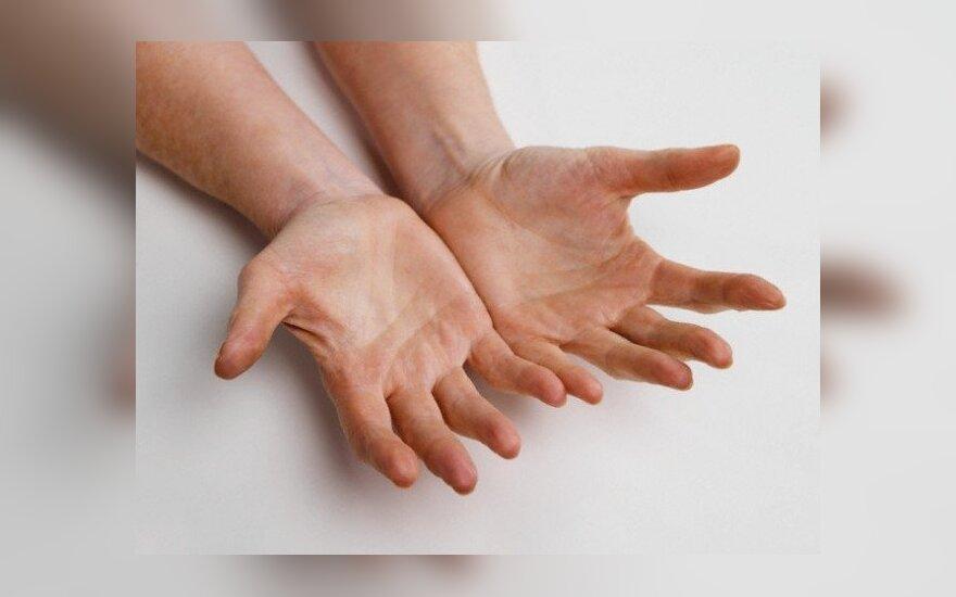 Riaumotondinis artritas